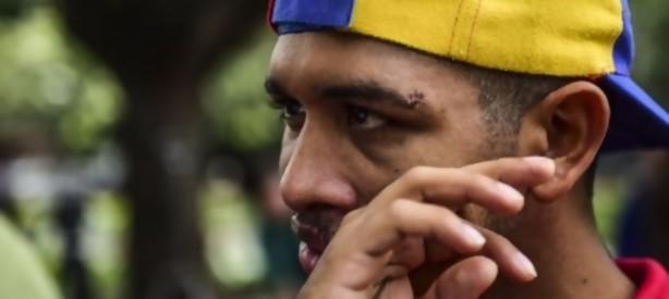 Portal 180 - Violinista de protestas contra Maduro dice que fue torturado en prisión