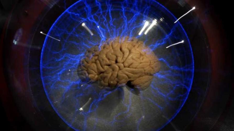 ¿Hay diferencias entre el cerebro del hombre y el de la mujer? - Quien te pregunto - Quién te Dice | DelSol 99.5 FM