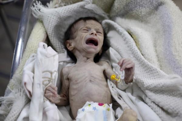 Un niño sirio desnutrido llora en un hospital de Damasco || AFP