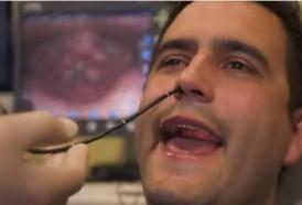 Portal 180 - El tres por uno para detectar cánceres de cabeza y cuello