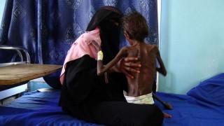El hambre sigue avanzando en el mundo, según la ONU | 180