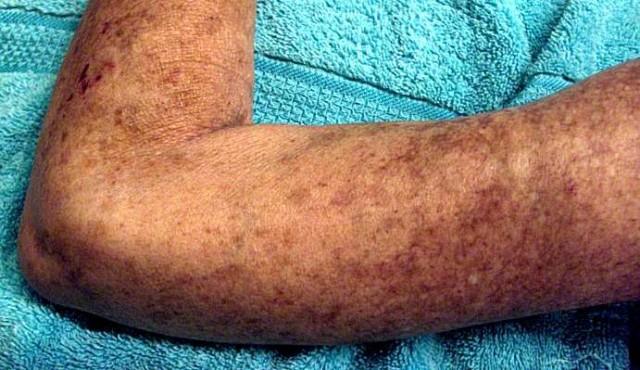 Células madre dan esperanzas a los pacientes de esclerodermia