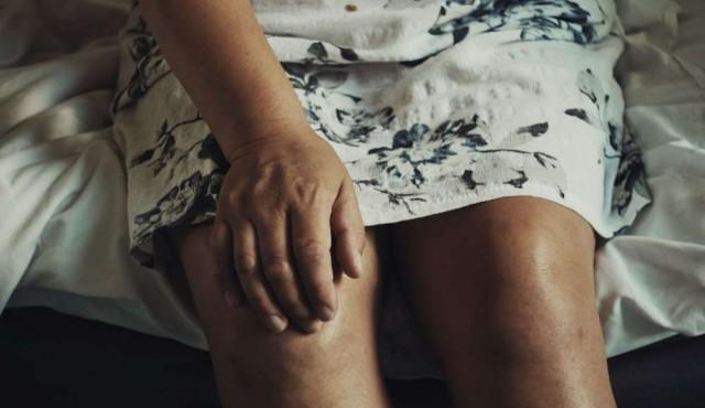 Artrosis, los síntomas y qué esperar del tratamiento