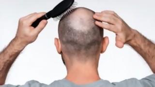 La alopecia ataca fuerte en el cuadro - La Charla - DelSol 99.5 FM