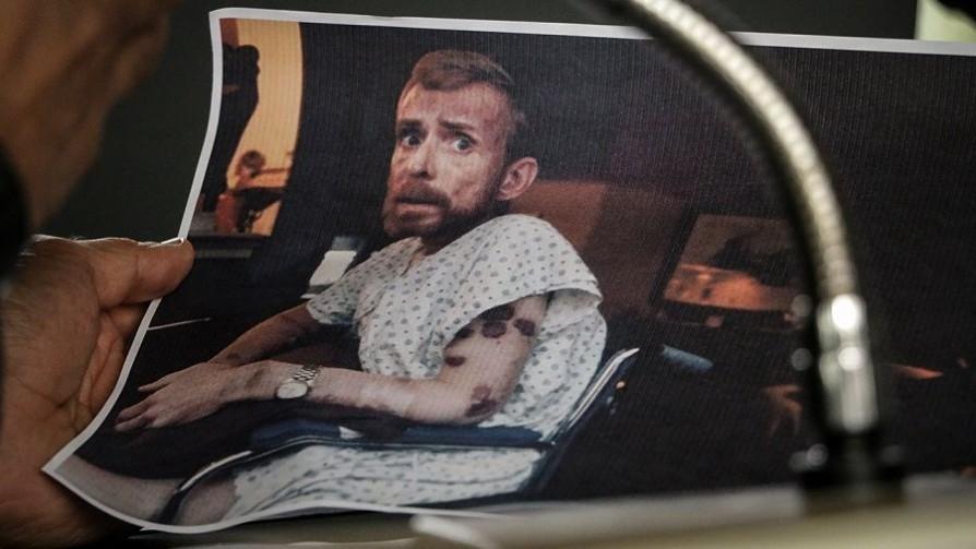 La foto que le dio rostro al sida - Leo Barizzoni - No Toquen Nada | DelSol 99.5 FM