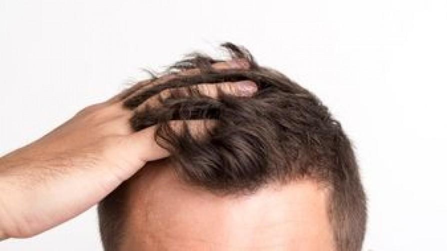 ¿Cuánto pelo te queda? - La Charla - La Mesa de los Galanes | DelSol 99.5 FM