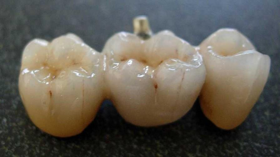La porcelana dental, clave en la historia de las dentaduras postizas - Segmento dispositivo - La Venganza sera terrible | DelSol 99.5 FM